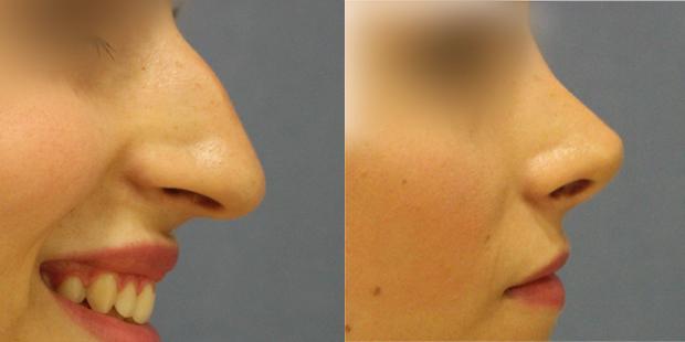 operacion-nariz-alicante