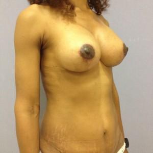 Recambio de protesis mamarias alicante