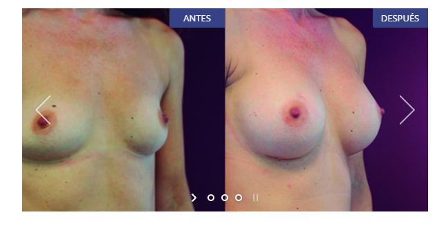 Implanty los pechos blagoveschenske