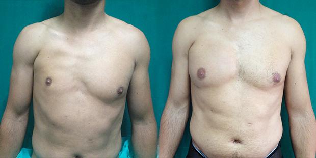 Corrección con implante pectoral + grasa