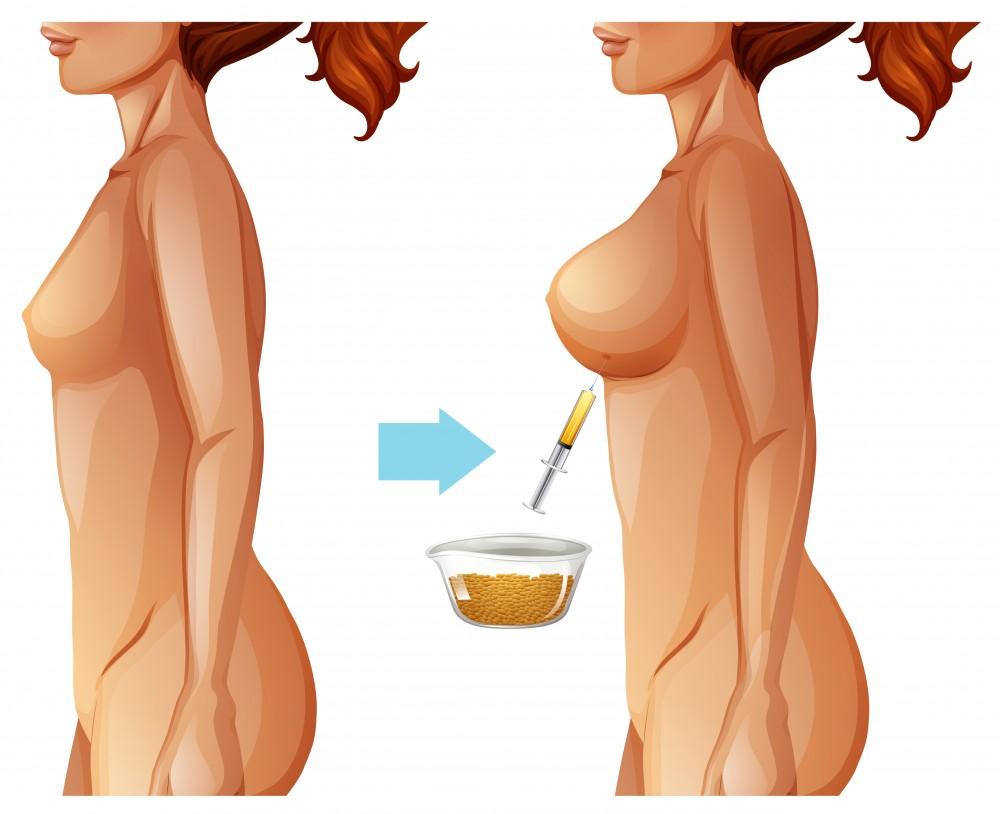 aumento de senos con grasa alicante