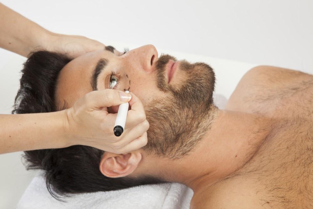 medicina estética para hombres en Alicante